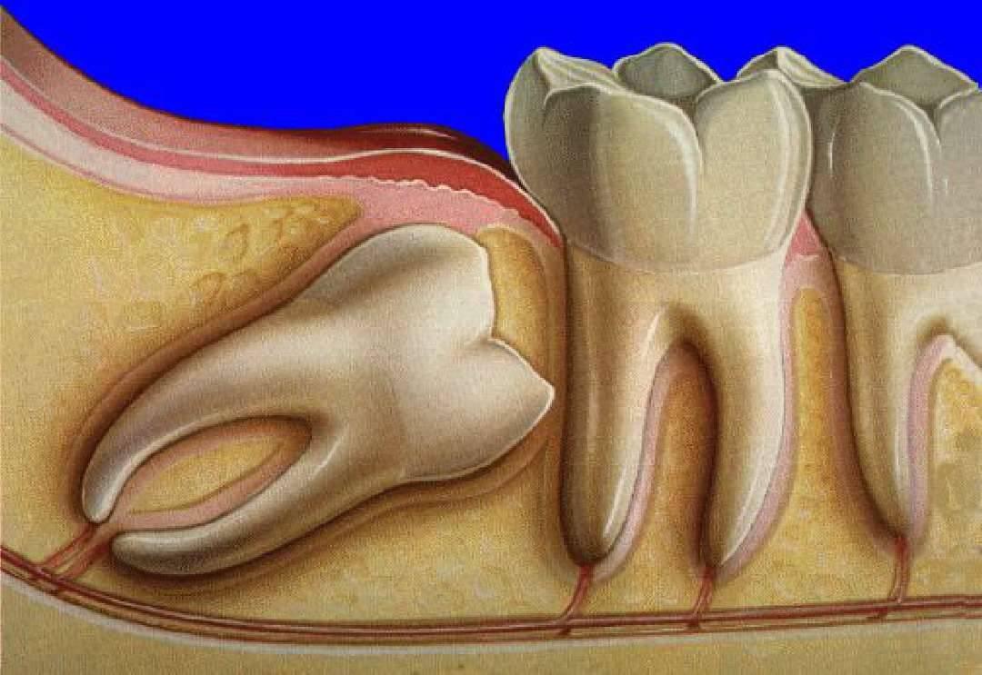 Стоит ли удалять зуб мудрости и когда это нужно делать?