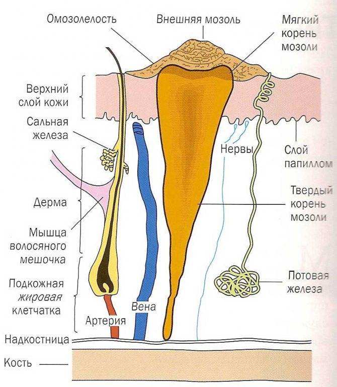 Мозоль на пальце ноги: виды, лечение медицинскими препаратами, народными средствами, хирургическими процедурами