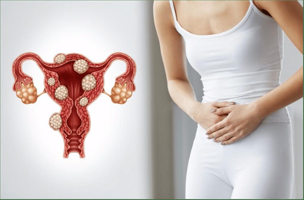 Миома матки после климакса: симптомы и лечение