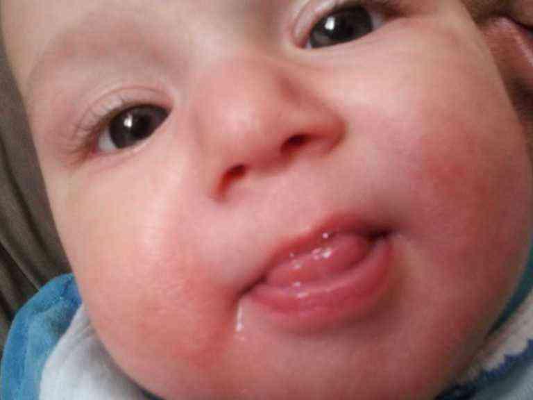 Сыпь у рта ребенка