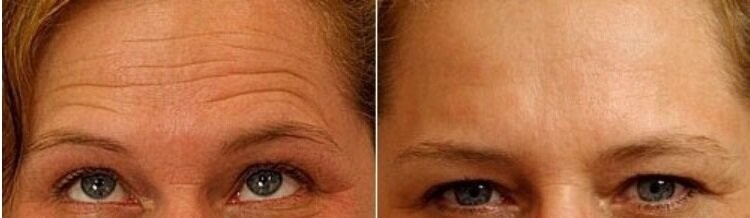 Рецепты самых эффективных масок от морщин вокруг глаз