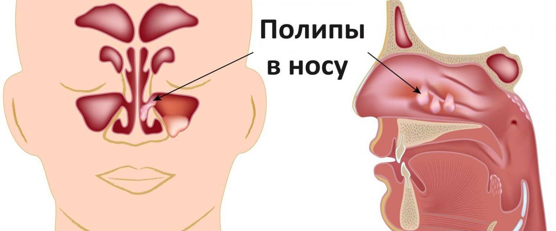 Чем опасно появление полипов в носу и можно ли их вылечить без операции