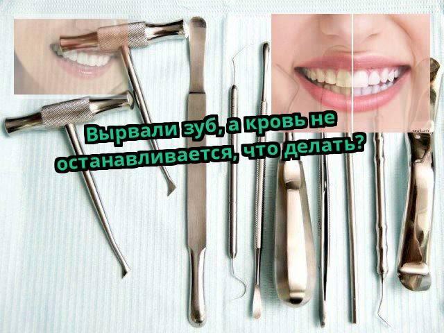 Сколько идет кровь после удаления зуба 8-ки