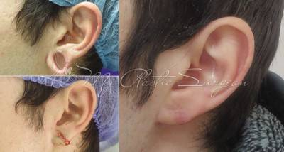 Микротия – врожденный дефект ушной раковины или ее полное отсутствие. пороки развития наружного уха
