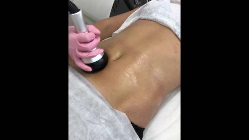 Вакуумный массаж живота для похудения