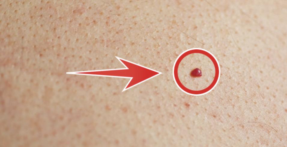 Красные пятна на руках: почему появились и причины шелушений и покраснений