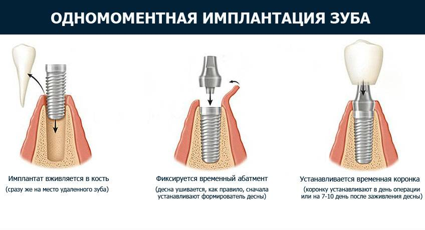 Полная имплантация зубов верхней челюсти