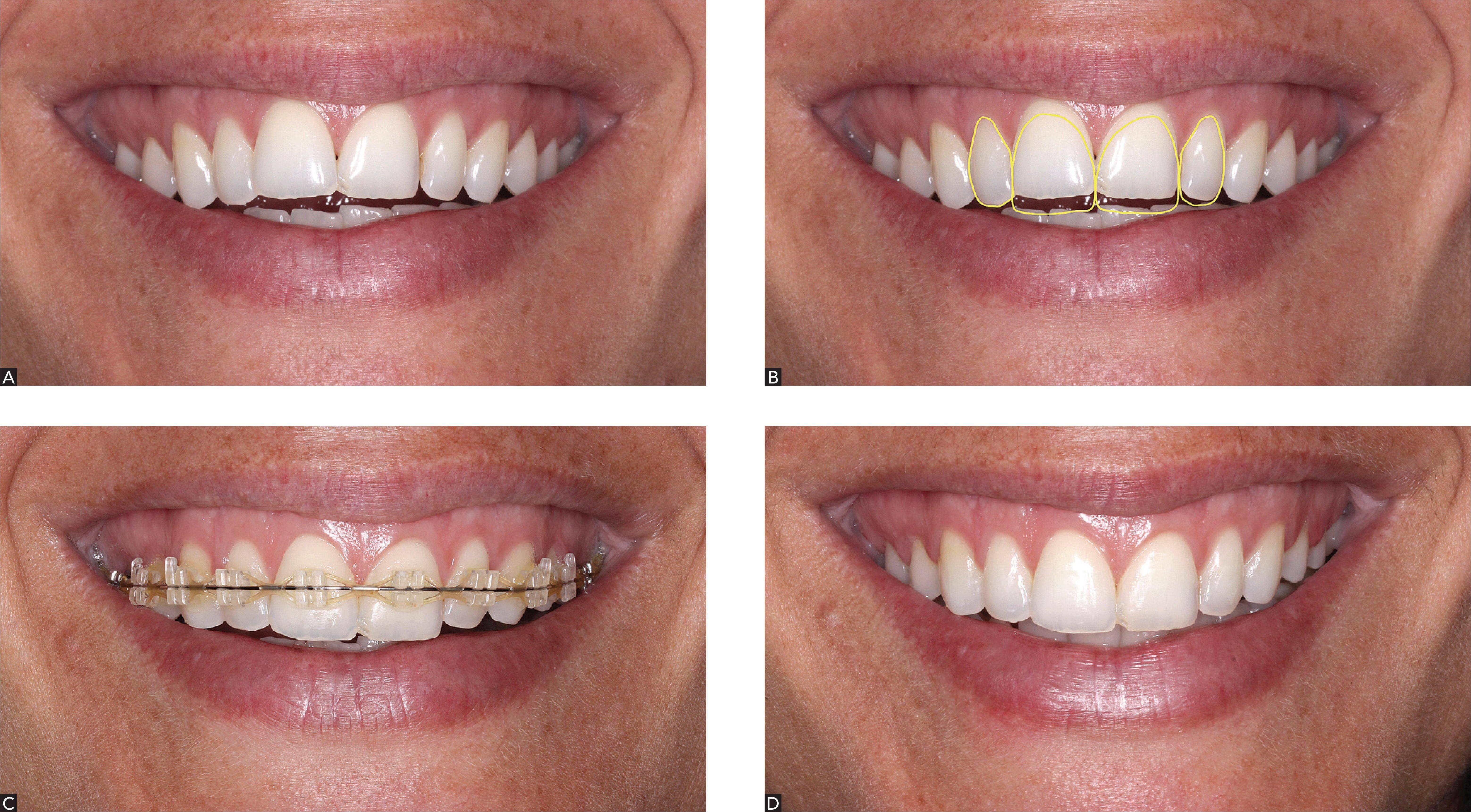 Как вытянуть ретинированный зуб (коренной, клык или резец) брекетами, если он вырос в десну: способы и фото коррекции