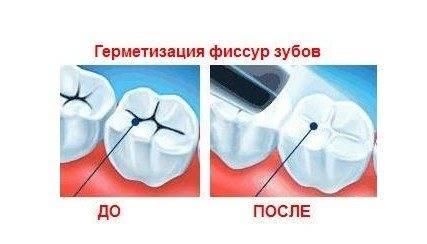 Герметизация у детей и взрослых: что такое фиссура зуба