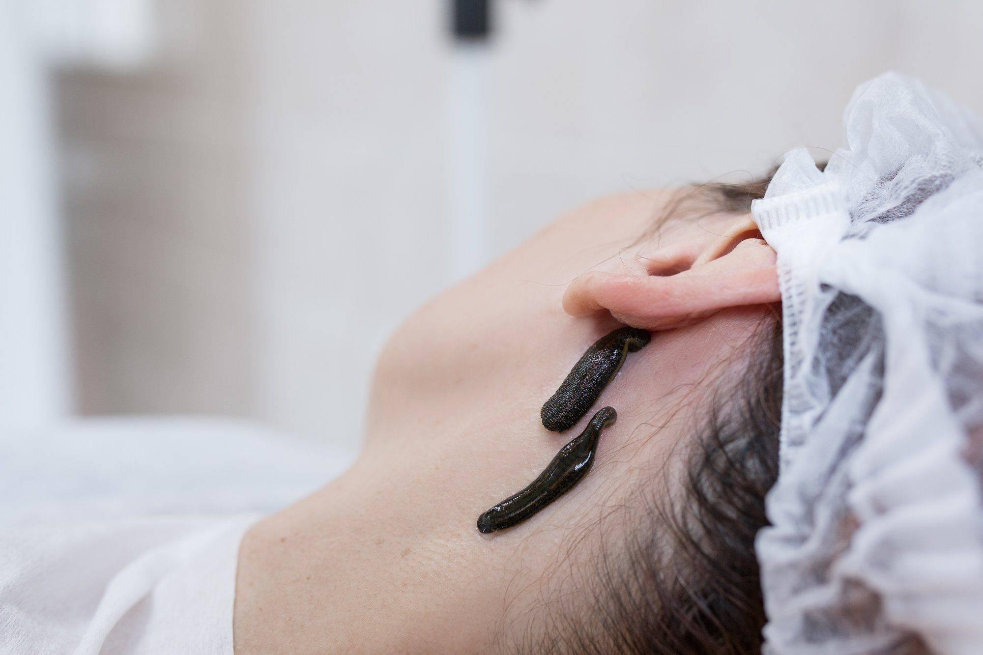 Гирудотерапия в гинекологии