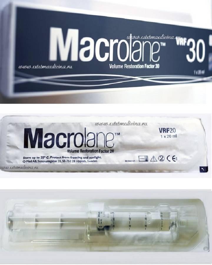Макролайн (macrolane)