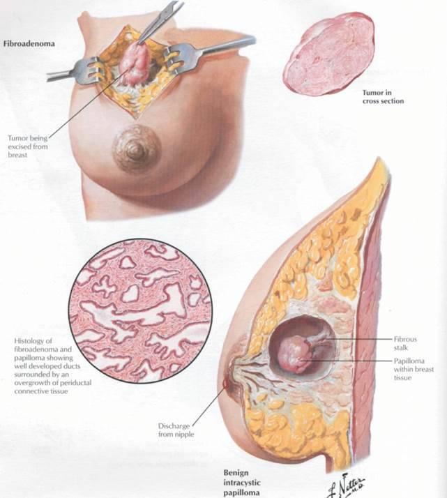Фиброма молочной железы: причины, симптомы, лечение