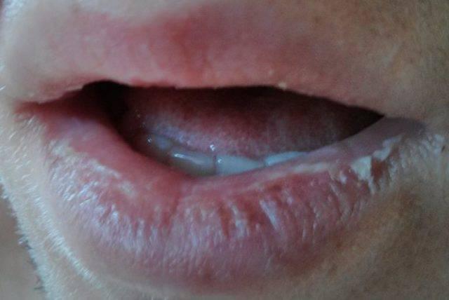 Белые пятна во рту на небе и на языке: почему возникает и как лечить, что за болезнь