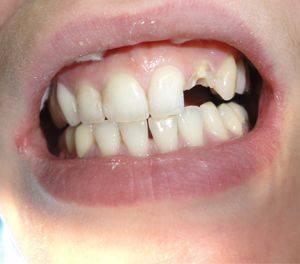 Что можно сделать, если сломался зуб под корень