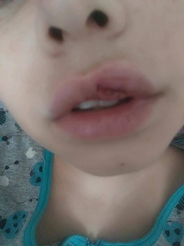 Что делать при повреждении губы у ребенка