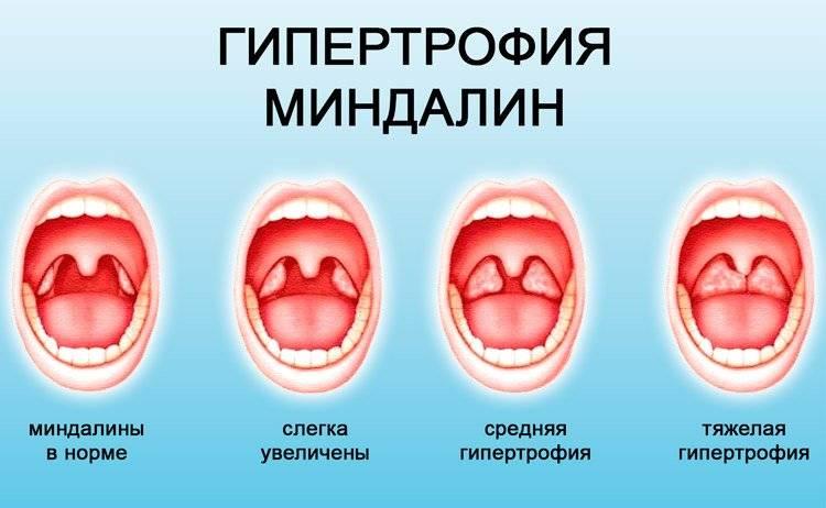 Как снять отек горла — какие лекарства и народные средства помогут
