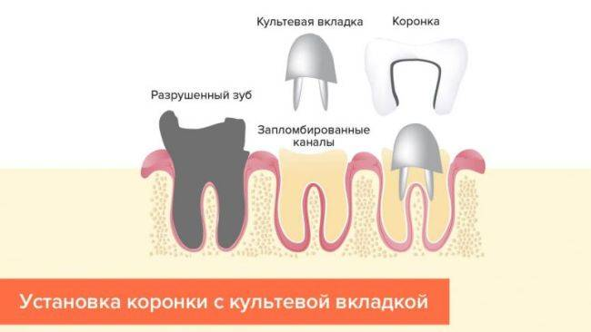 Почему потемнела коронка зуба и что делать?
