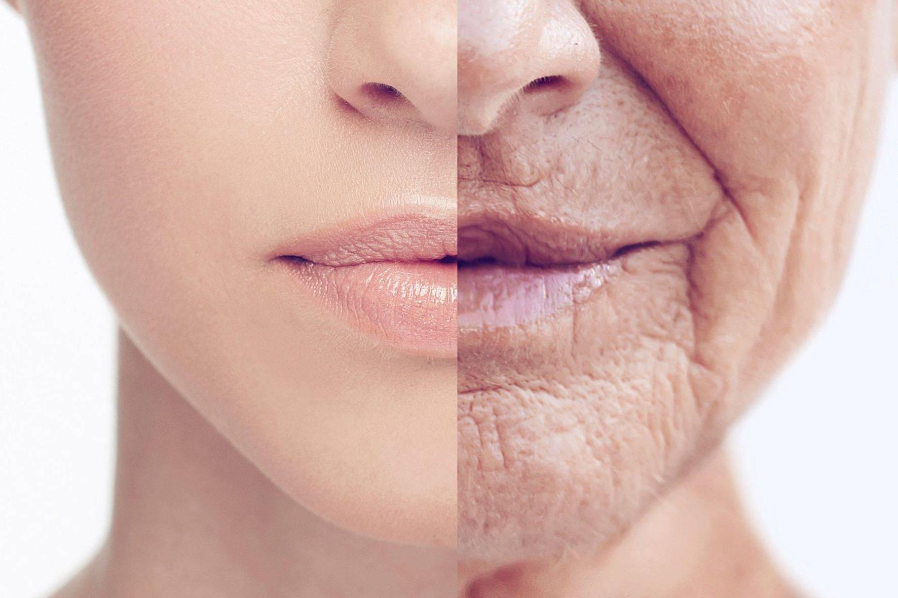 Как избавиться от глубоких морщин на лице: народные средства, правильный уход и профессиональные процедуры