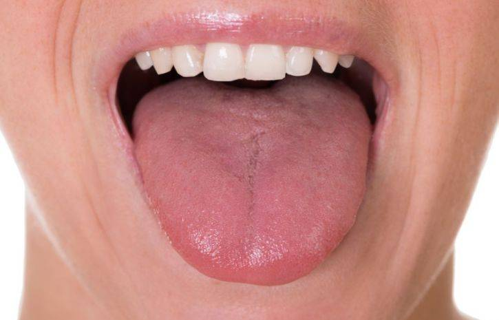 Грибок на языке — симптомы и лечение с фото