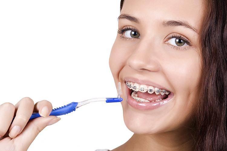 Болят и шатаются зубы после установки брекетов