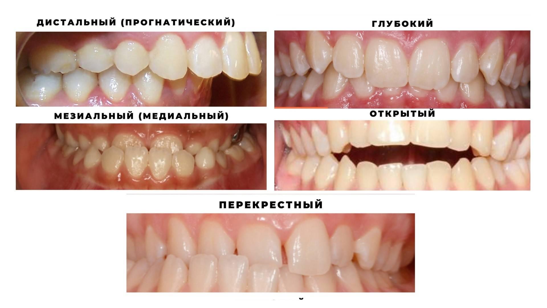 Аномалии размеров и формы зубов микродентия и макродентия