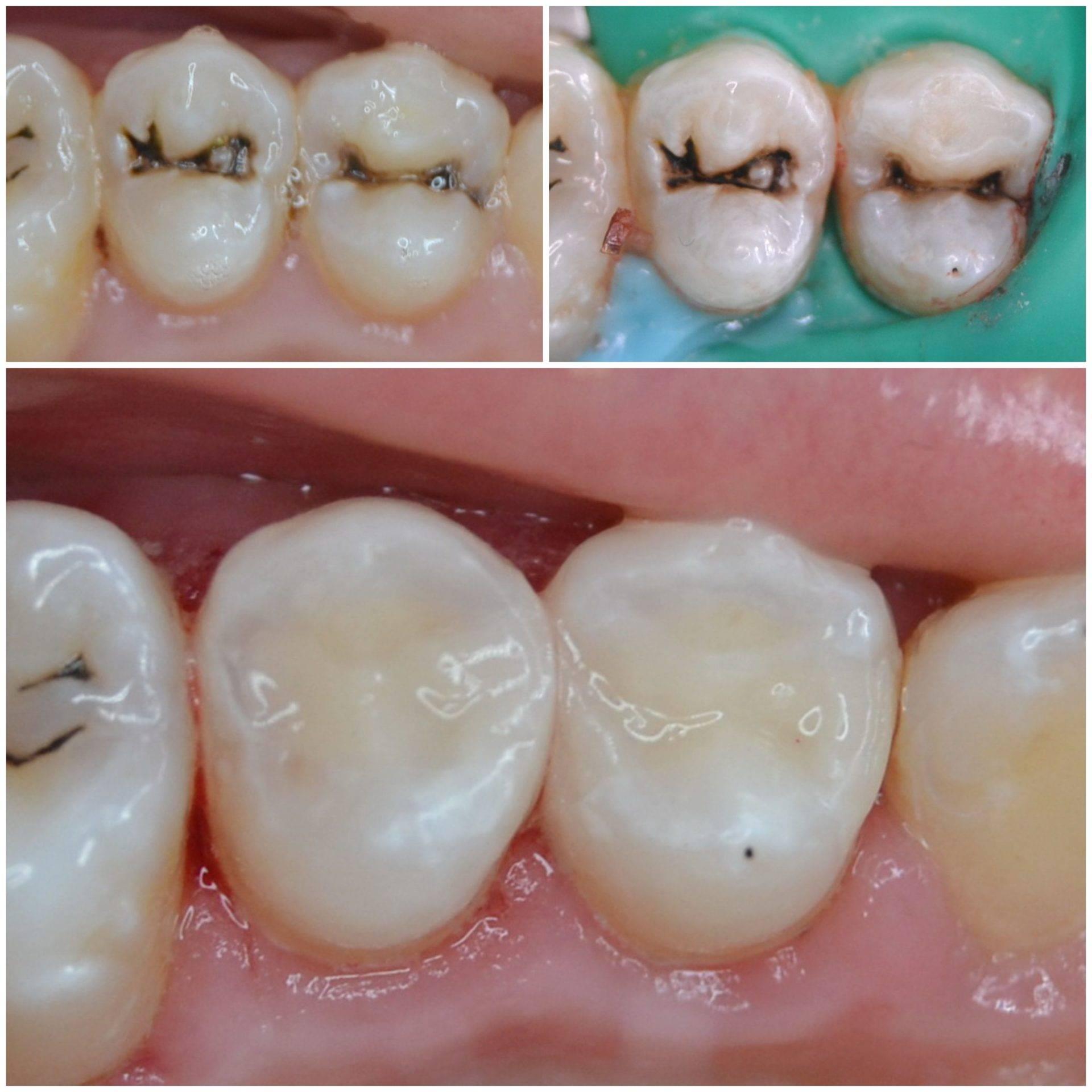 Лечение и профилактика кариеса между зубами (передними или жевательными): фото до и после