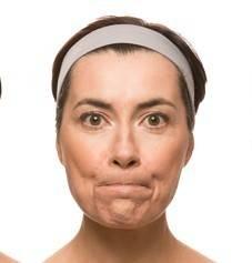 Как избавиться от брылей на лице?