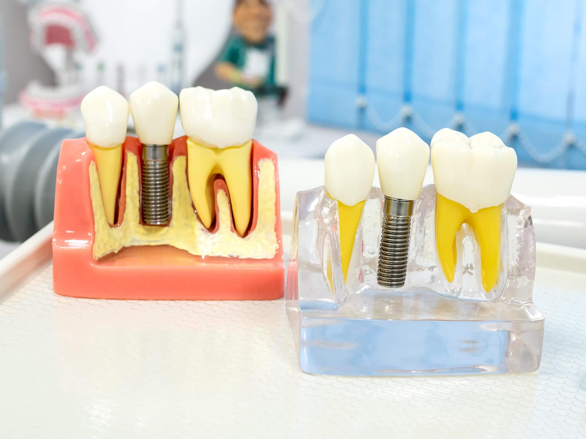 Как правильно ухаживать за имплантами зубов, рекомендации врача