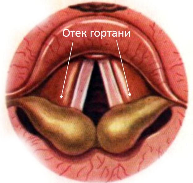 Причины, симптомы и лечение отека гортани