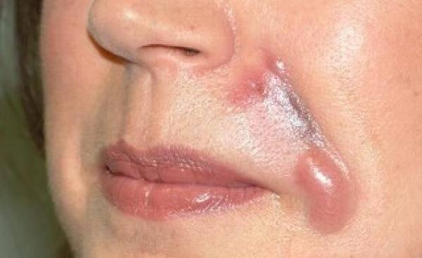 Инъекция красоты: может ли гиалуроновая кислота стать причиной аллергической реакции?