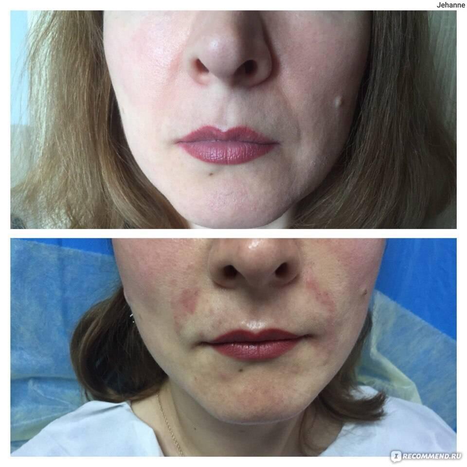 Как вывести гиалуронку и уменьшить губы: эффективные способы и советы