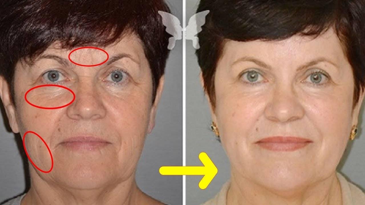 Пиявки в косметологии для подтяжки лица – отзывы о гирудопластике