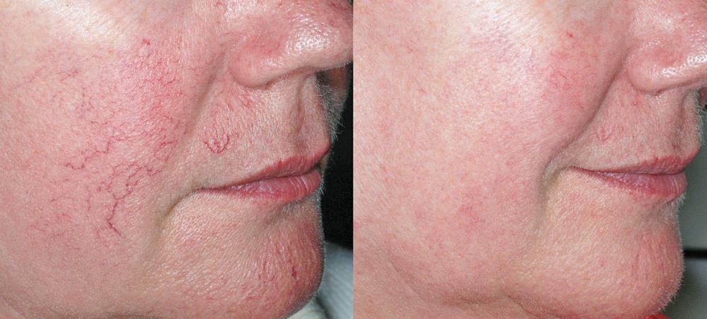 Как бороться с куперозом. причины покраснения и сосудистой сетки на лице