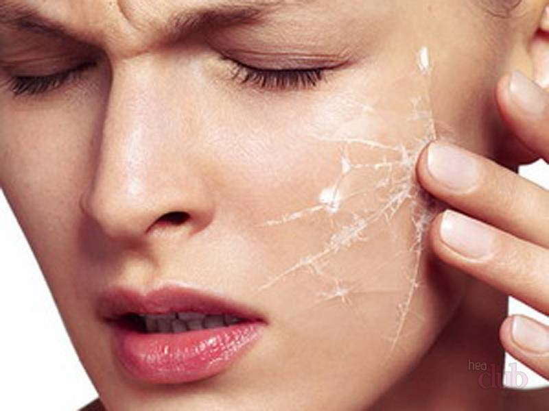 Сухой дерматит — чем лечить кожу