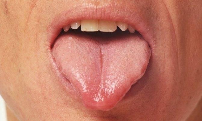 Папилломы под языком: когда нужно срочно обращаться к врачу?