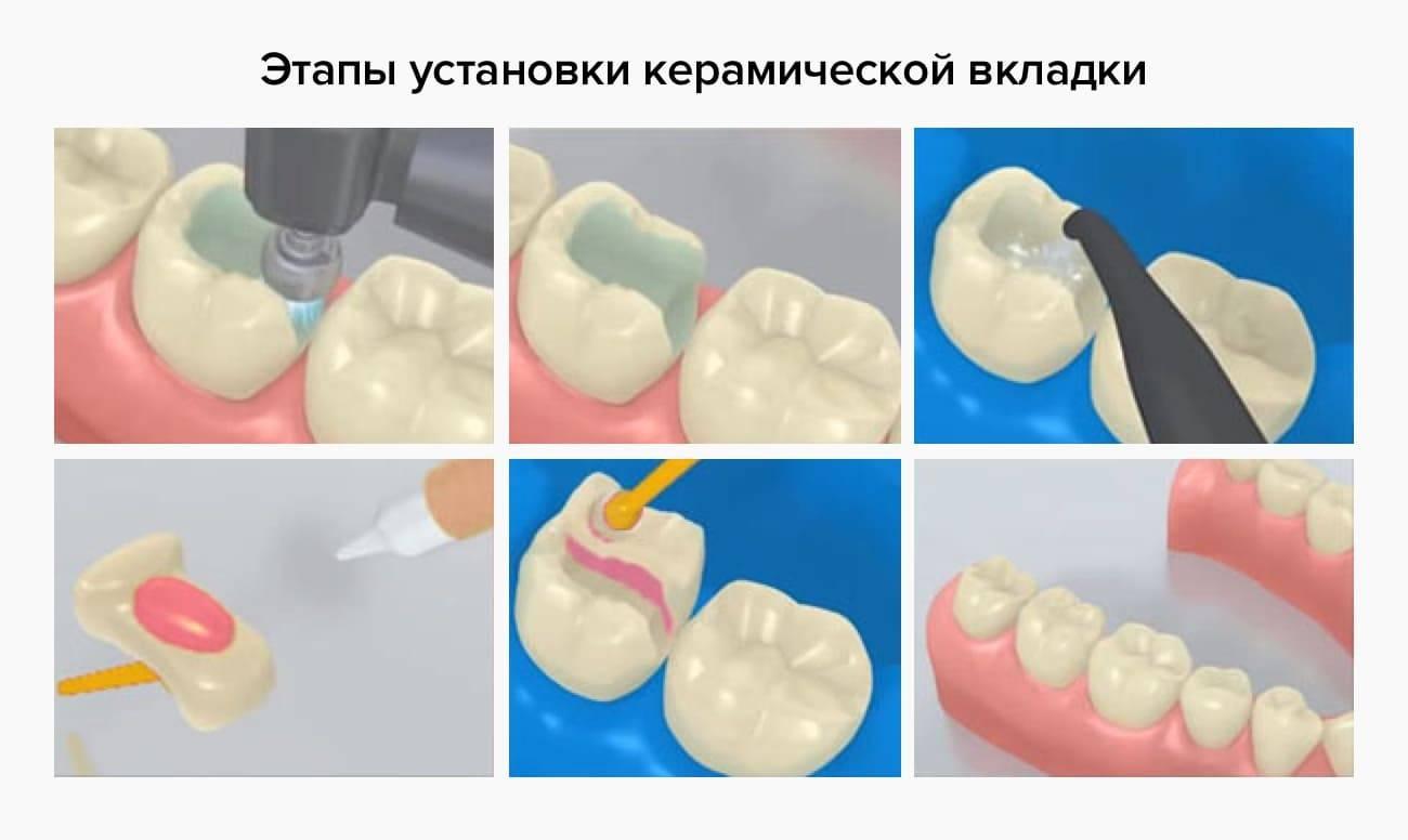 Пломбирование зубов и виды зубных пломб