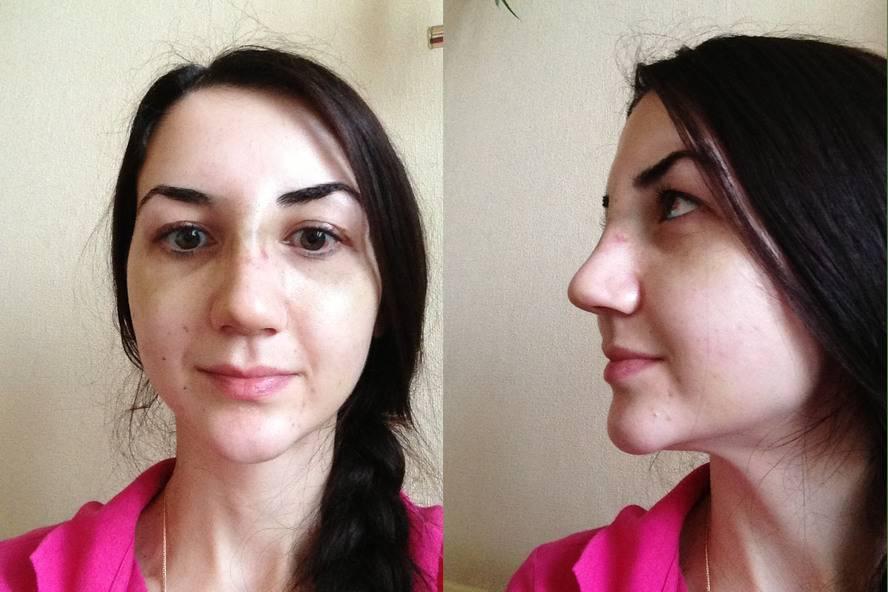 Послеоперационный период ринопластики носа: что можно, а чего нельзя?
