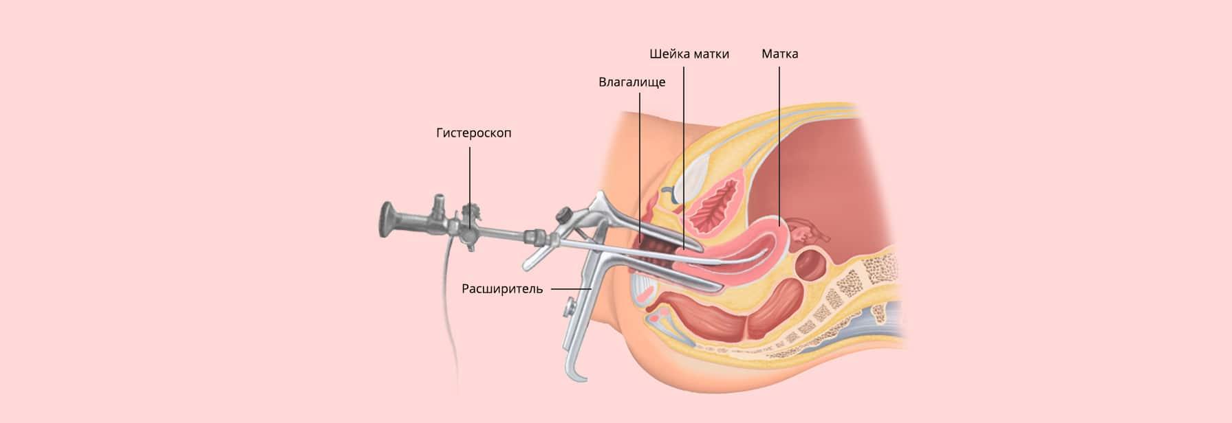 Удаление полипа в матке — гистероскопия и ее последствия