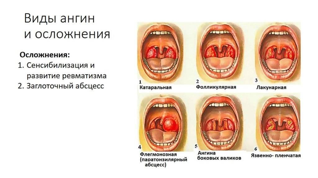 Как лечить бактериальную ангину