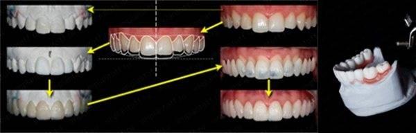 Патологическая стираемость зубов, уходи!