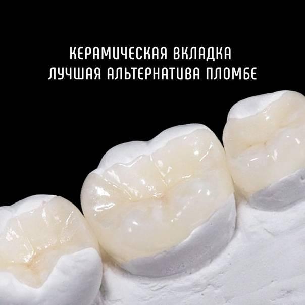 Особенности керамических пломб