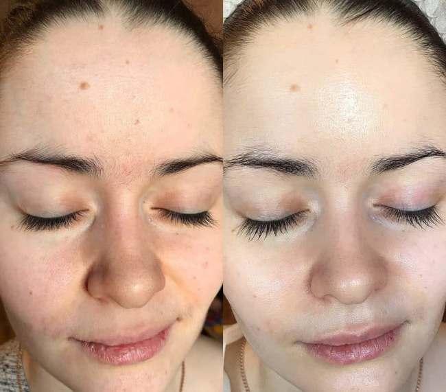 Дезинкрустация кожи лица в косметологии: методика, показания и противопоказания. дезинкрустация: эффективная процедура очищения кожи лица