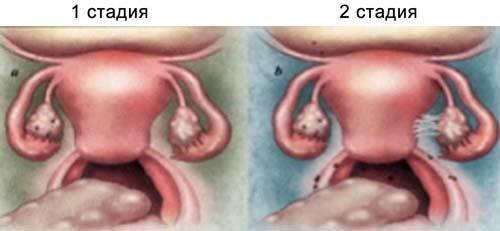 Эндометриоз левого яичника