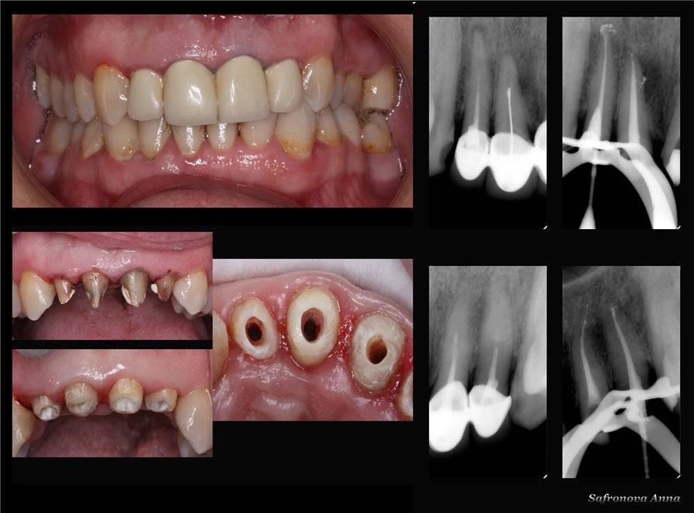 Почему болит штифтованный зуб
