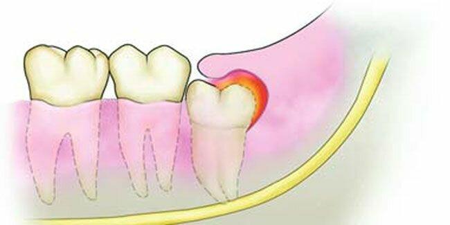 Нужна срочная помощь: что делать, если остался осколок после удаления зуба?