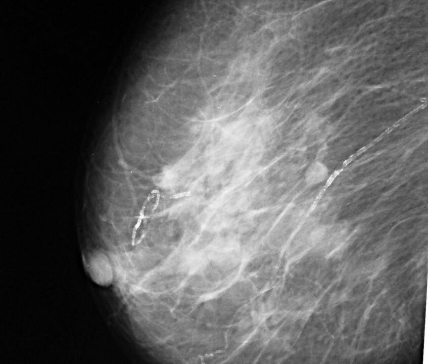 Фиброма молочных желез: симптоматика и методы лечения