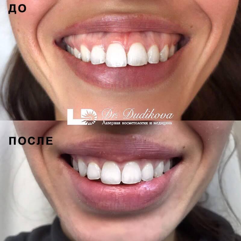 Десневая улыбка: как исправить? коррекция, цены, фото