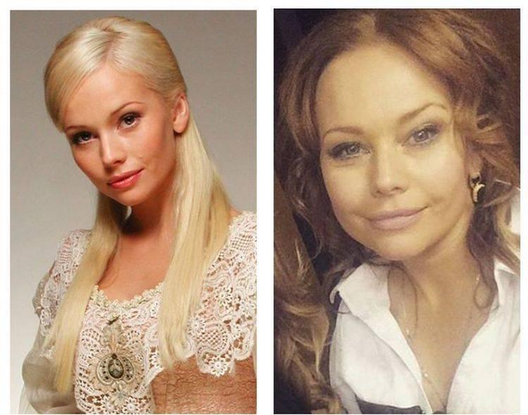 Елена корикова до и после пластики — биография +фото и видео