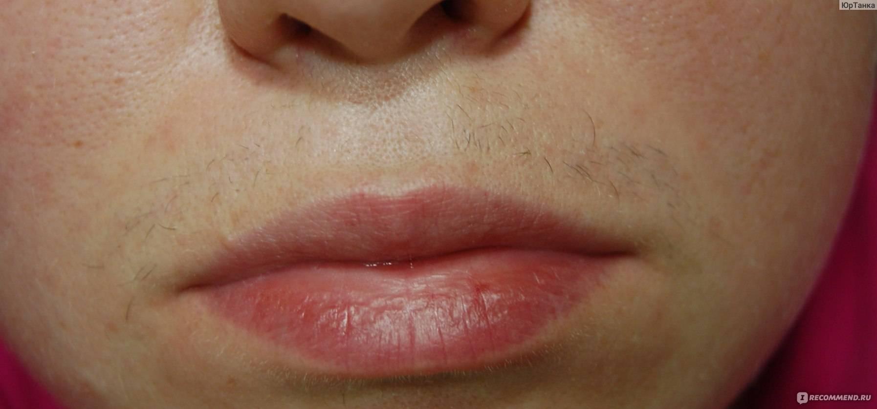 Как убрать усики над губой – эффективные методы
