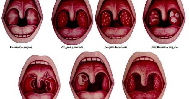 Тонзиллит: определение, симптомы и признаки заболевания